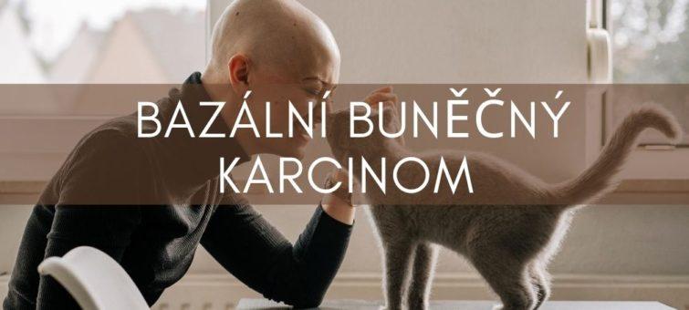 bazální buněčný karcinom