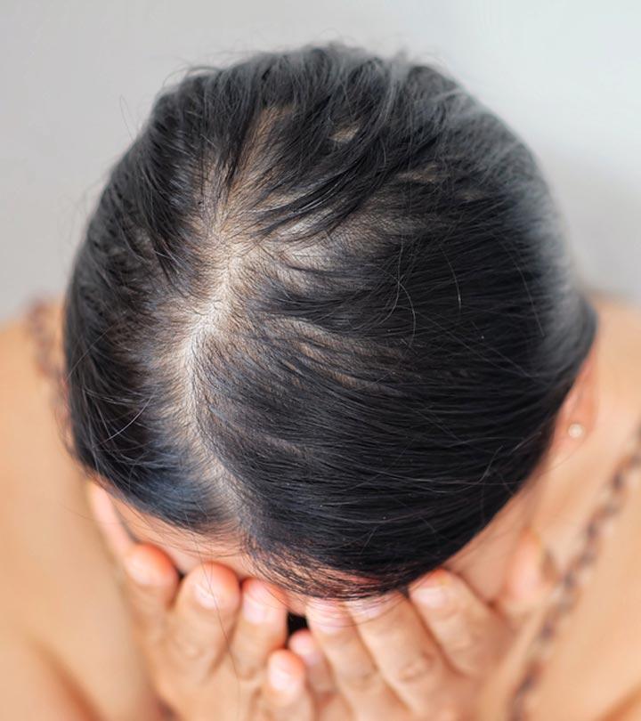 alopecia žena s černými vlasy