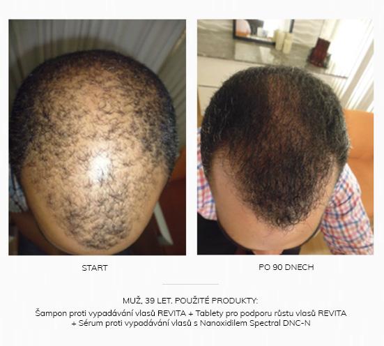 Vlasy před a po (užívání vitamínů na vlasy)
